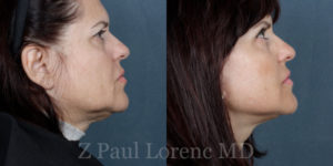 Facelift Surgery in NYC Before and After