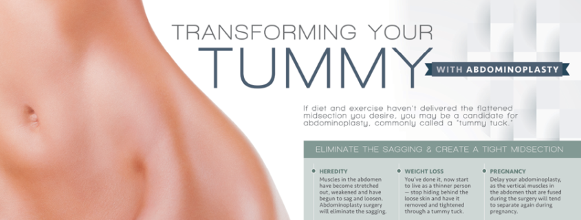 Transforming Your Tummy with Abdominoplasty