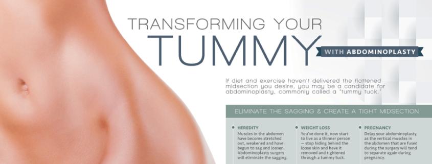 tummy tuck in new york city | abdominoplasty | Dr. Z. Paul Lorenc