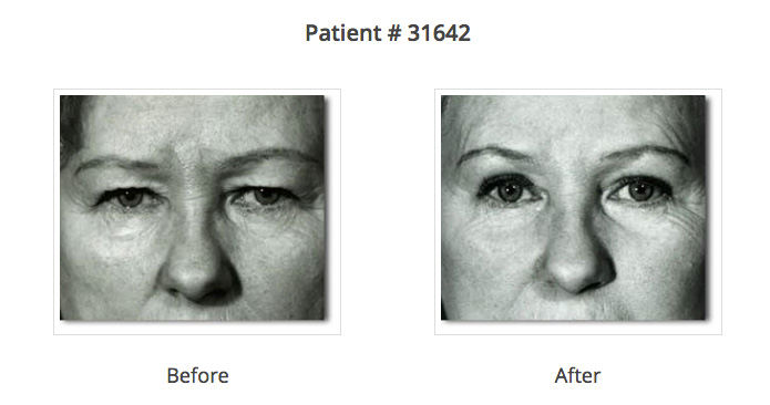 blepharoplasty before and after photos | plastic surgeon NYC