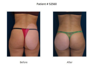 brazilian butt lift nyc buttock augmentation