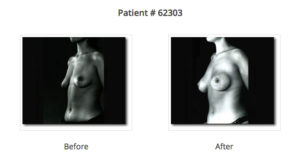 before and after pictures arm breast augmentation