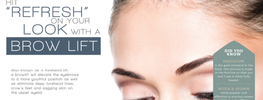 brow lift in new york city | Dr. Z. Paul Lorenc