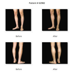 before and after pictures calf augmentation