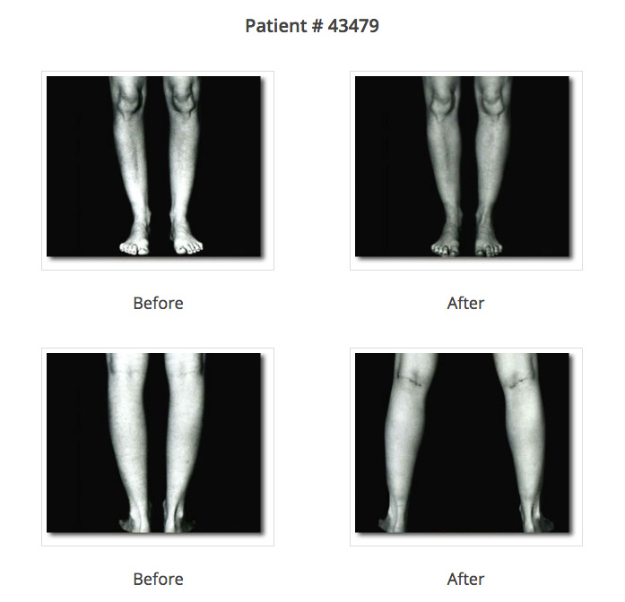 calf augmentation before and after