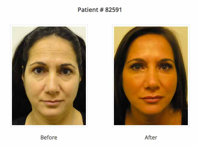 face lift by syringe before and after | plastic surgery NYC
