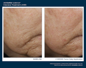 Smoothing Intensive Treatment Lines