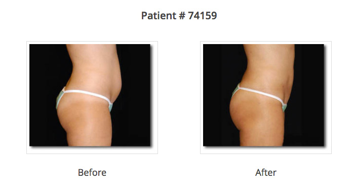 benefits of laser liposuction
