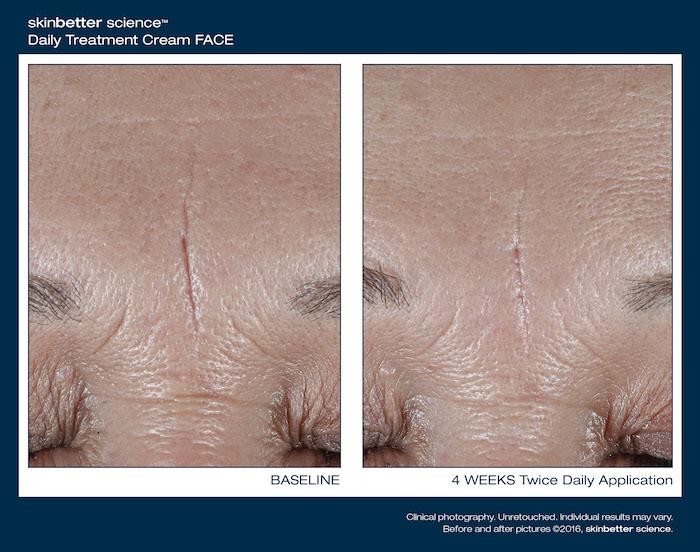 Skinbetter Science   Dr. Z. Paul Lorenc   Manhattan NYC