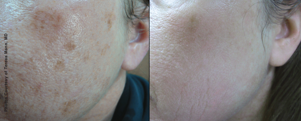 Sun Damage Removal with Forever Young Broadband Light