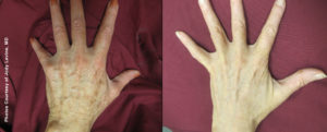Hand Rejuvenation with Forever Young Broadband Light