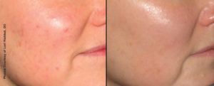 Facial Rejuvenation with Forever Young Broadband Light