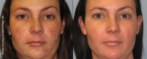 Facial Rejuvenation with Forever Young BBL Treatment