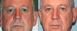 Facial Rejuvenation with Forever Young BBL Treatments