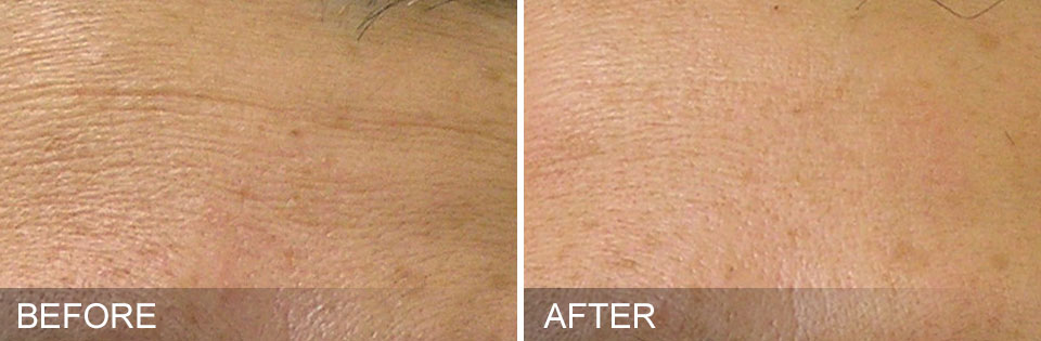 Fine Lines – After 1 month