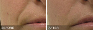 Hydrafacial Before & After