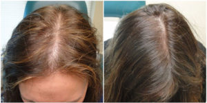 Before & After Hair Loss Treatment with PRP
