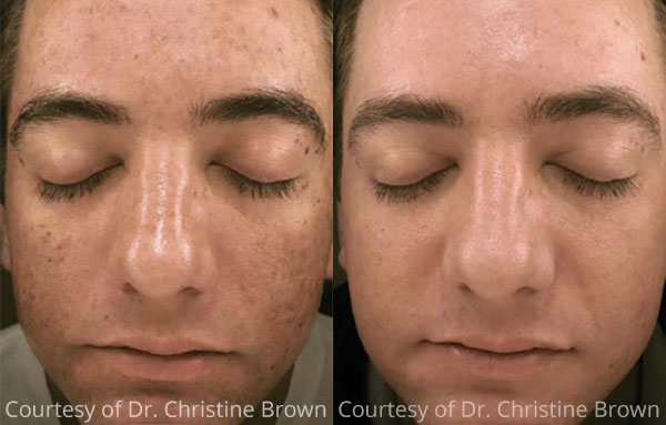 Before & After Microneedling with PRP