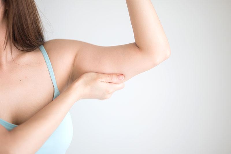Arm Lift - Brachioplasty
