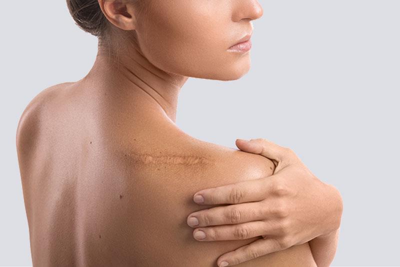 Keloids Scar Treatment