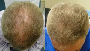 Hair Restoration with PRP Therapy