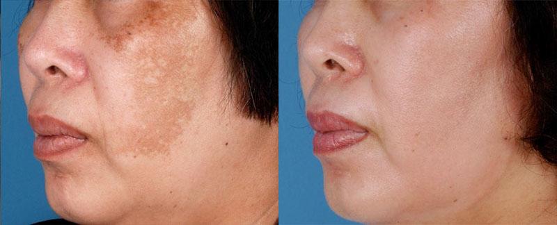 ZO Retinol Skin Brightener Before and After